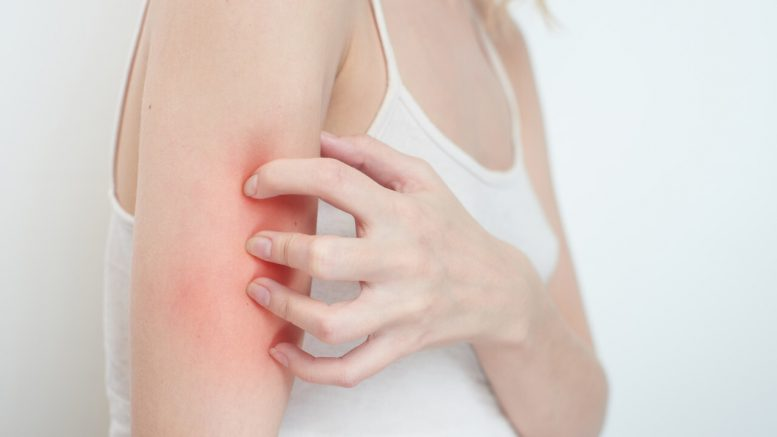 Skin Allergy: Types, Causes, Home Remedies, Treatment