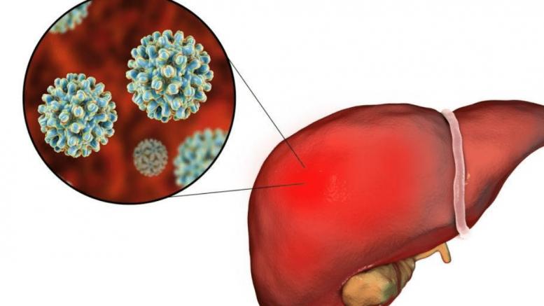 Hepatitis B Symptoms And Signs