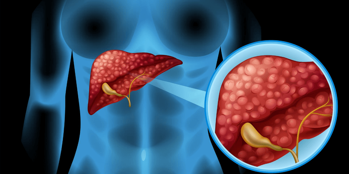 Everything You Must Know About Cholestatic Liver Disease and Its treatments