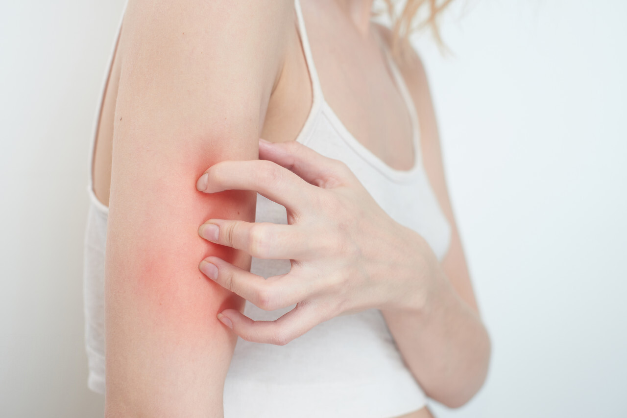 What is a Skin Allergy