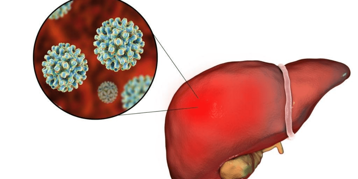 Hepatitis B: What are the symptoms and signs?